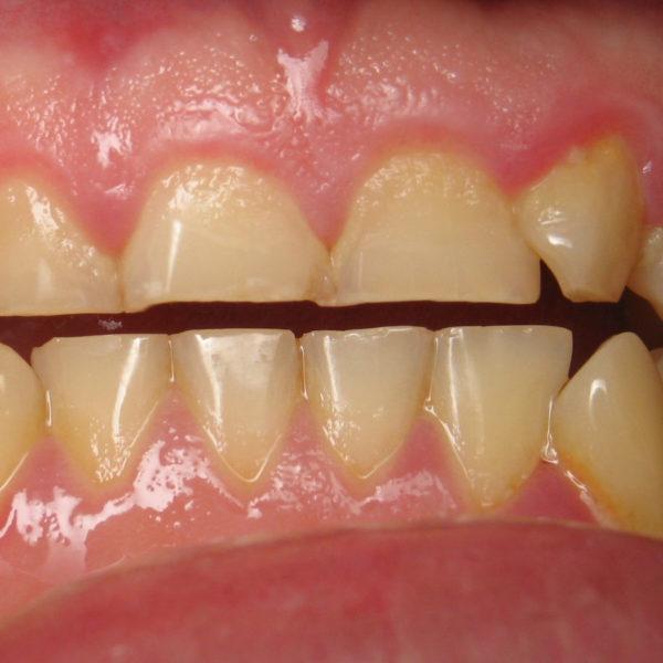 سایش های دندانی