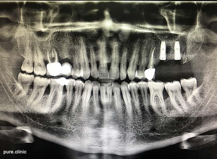 جایگزاری ایمپلنت همزمان با کشیدن دندان