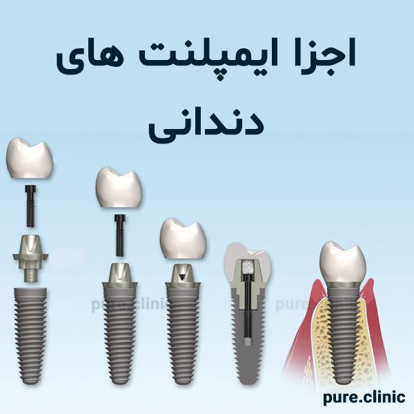 اجزا ایمپلنت های دندانی