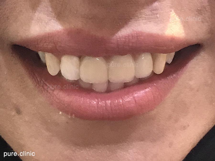 ایمپلنت در دندان های قدامی