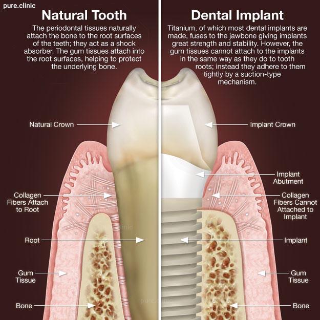 مقایسه ایمپلنت با دندان طبیعی
