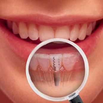 مزایای ایمپلنت های دندانی