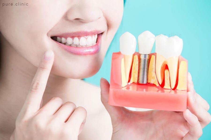 ایمپلنت دندانی در کودکان و نوجوانان