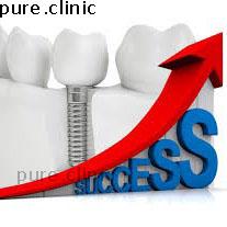 معیارهای موفقیت ایمپلنت های دندانی