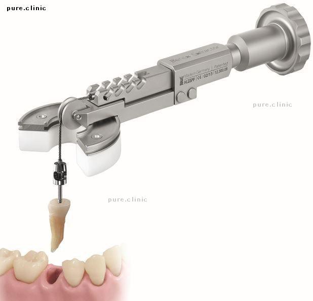 کشیدن غیر تهاجمی دندان