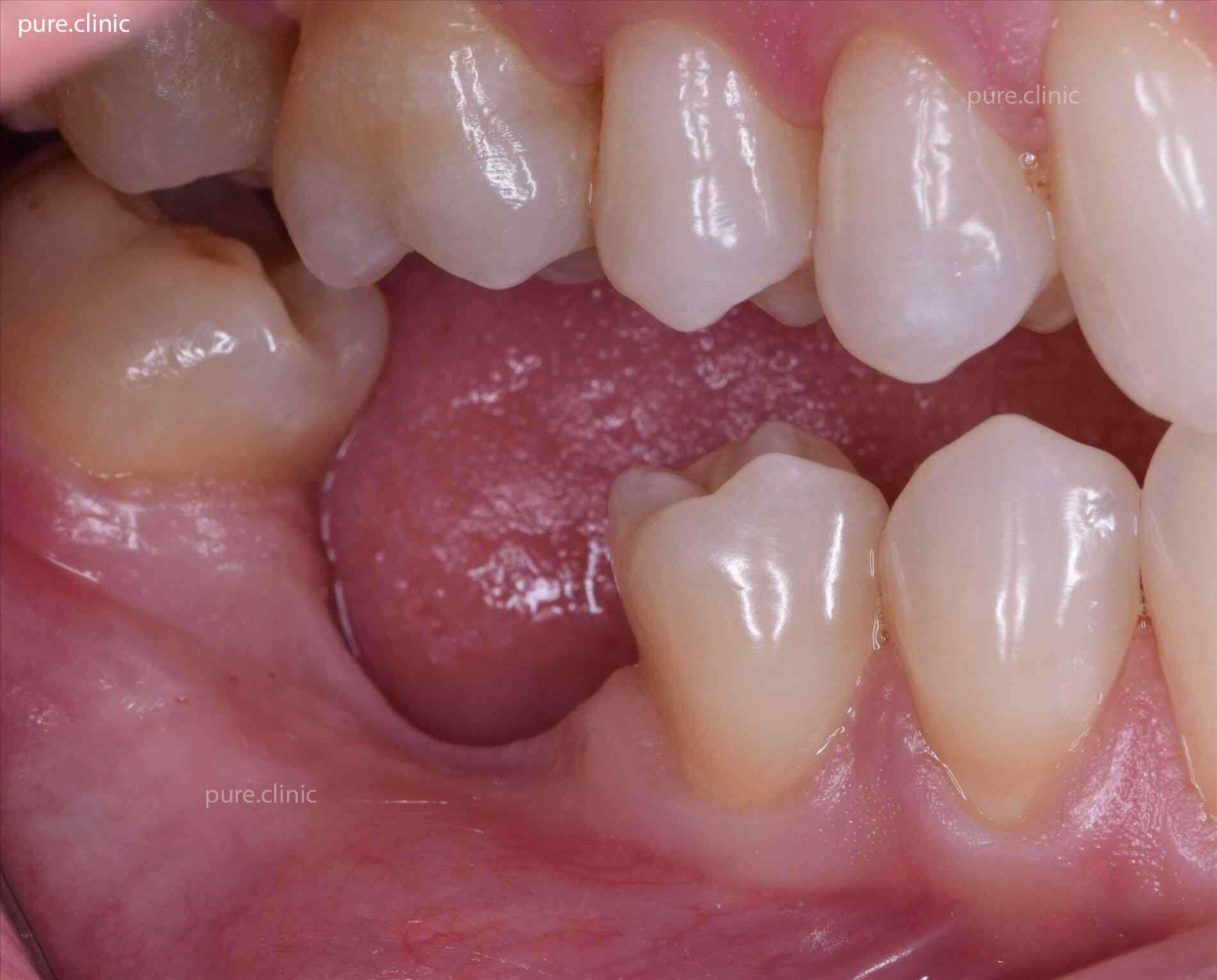 از دست رفتن زودهنگام دندان