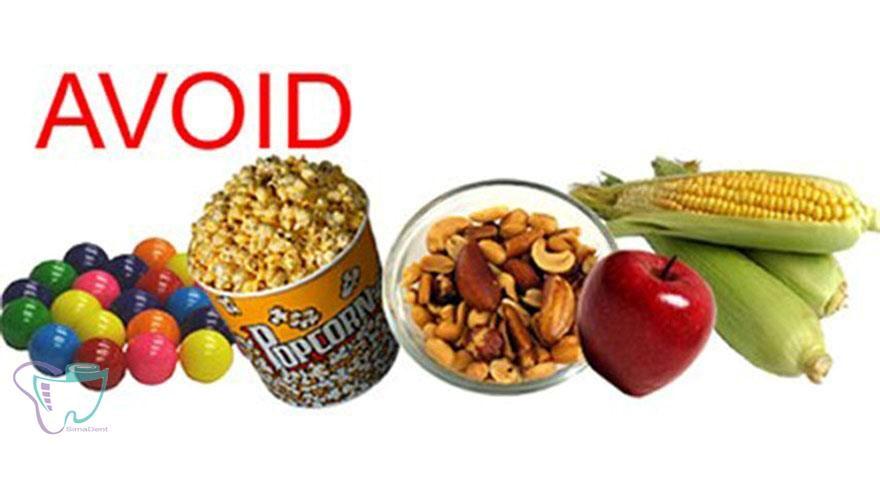 نکات غذایی افراد دارای اپلاینسهای ارتودنسی