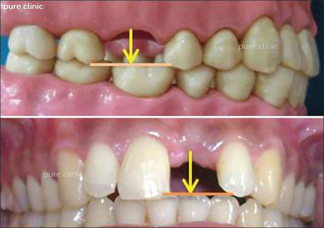 تاثیر متقابل ایمپلنت روی دندانهای مجاور