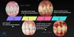 دپیگمانتاسیون لثه (Gum Depigmentation)