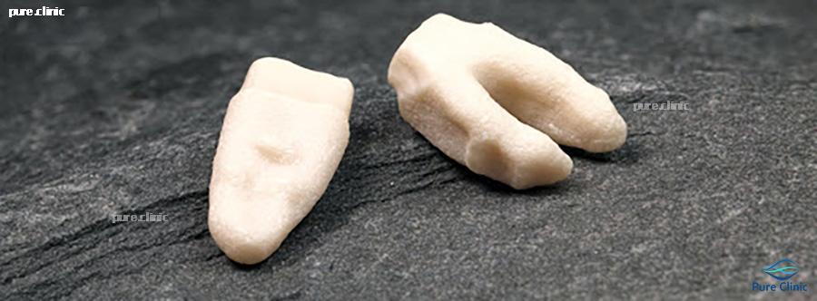 ایمپلنت های شکل دندان