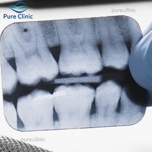 رادیوگرافی دندانی