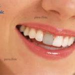 علل تغییر رنگ دندان